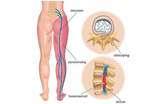 uitstralende pijn in het been bij een rughernia