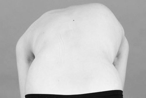 buktest bij scoliose tijdens oefentherapie cesar mensendieck